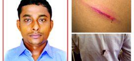 নাঙ্গলকোটে বিএনপি'র দু'গ্রুপের সংঘর্ষে সাংবাদিক আহত