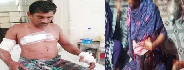 নোয়াখালীর চাটখিলে  প্রশাসনের লোক পরিচয় দিয়ে ঘরে ঢুকে স্বামী-স্ত্রীকে কুপিয়ে জখম
